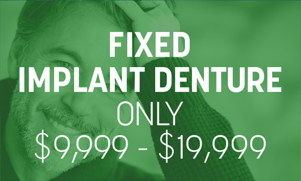 fixed implant denture special offer