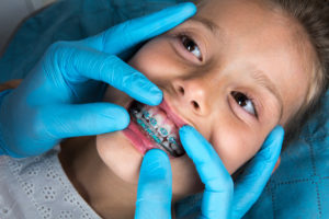 dentist checking on young girl's dental braces in TX